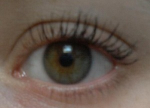 eye after